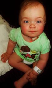 Toetame haruldase ainevahetushaigusega 1-aastase Gretheli ravi Inglismaal