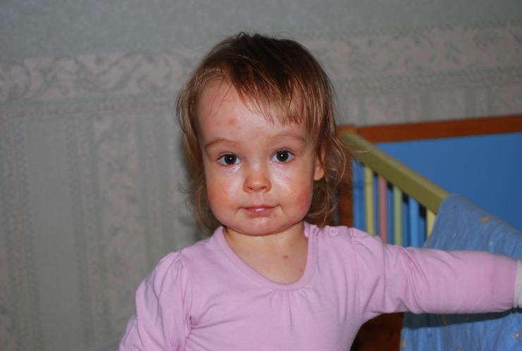 Pildil 3-aastane Laura Foto: Lastefond