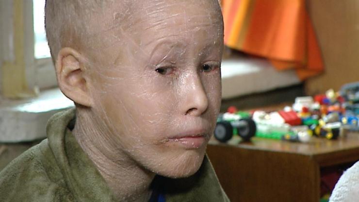 Lastefond kogub annetusi ihtüoosihaigele poisile vannitoa ehitamiseks