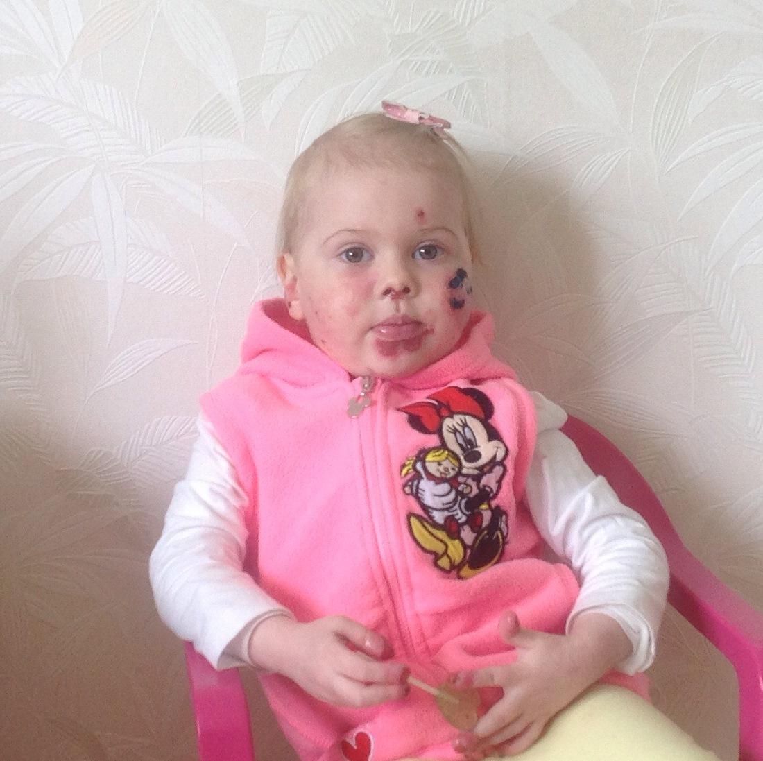 Lastefond jätkab haruldase nahahaigusega Cassandra igakuist toetamist