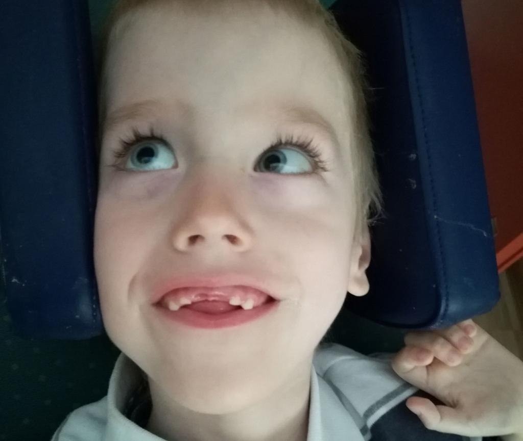 Lastefond ulatab madala kaaluiibega ajukahjustusega poisile abikäe ravitoidu soetamisel